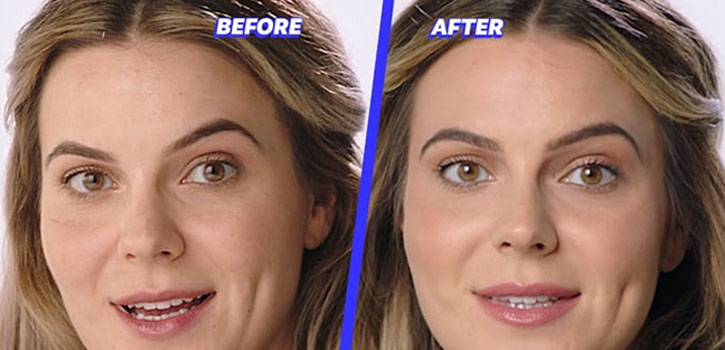 Juvaderm-before-after
